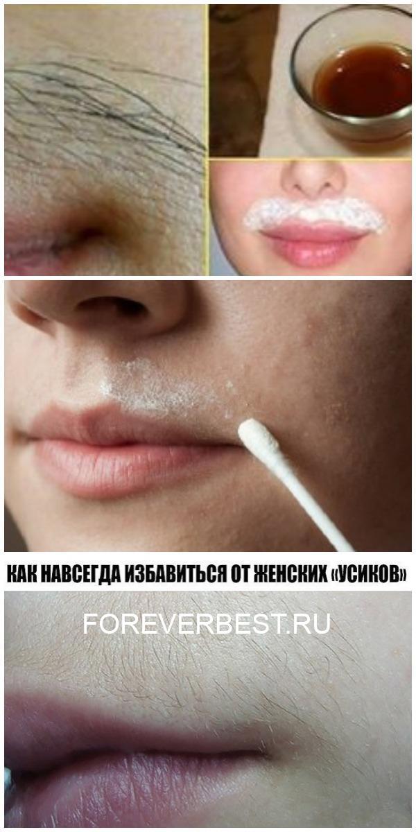Природный рецепт удаления усиков на лице