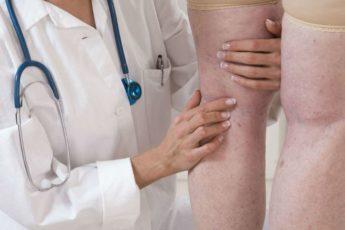 Страдала от варикоза, опытный ревматолог вылечил меня за 14 дней. Делюсь этим методом 1